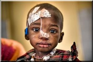 enfaents_malnutris_16000_mauritanie
